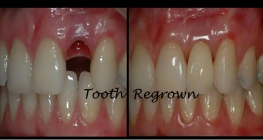 Teeth-Regrown